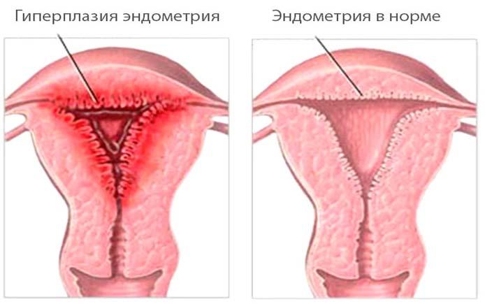Эндометрий в норме и при гиперплазии