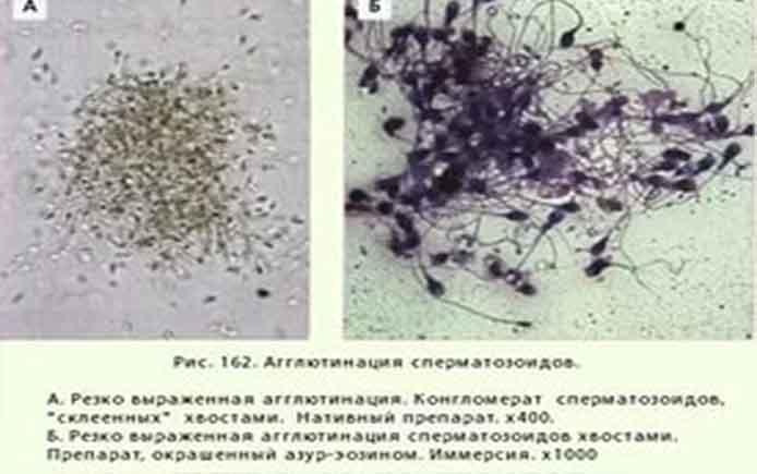 Показатели спермограммы  emamaru