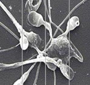 norma-antitel-k-spermalnim-ag