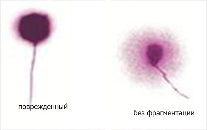 Фрагментация ДНК спермтаозоидов