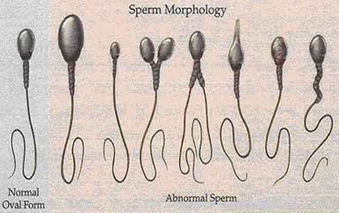 Патологические сперматозоиды могут