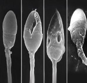 Причина неподвижных сперматойдов