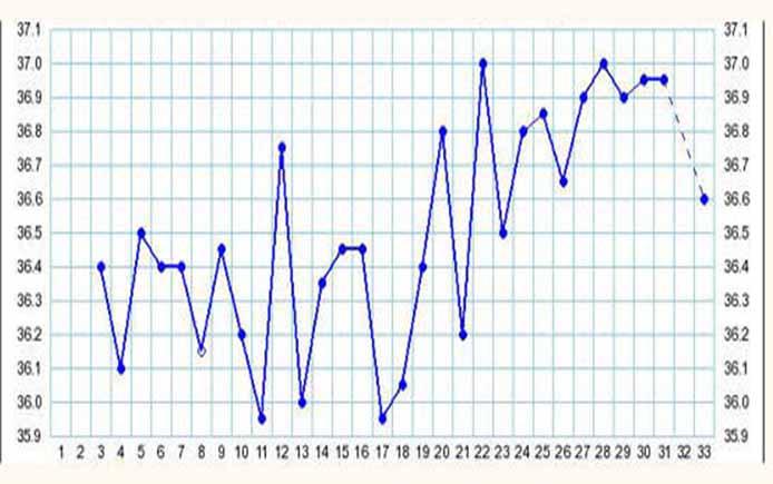 Атипичный график БТ