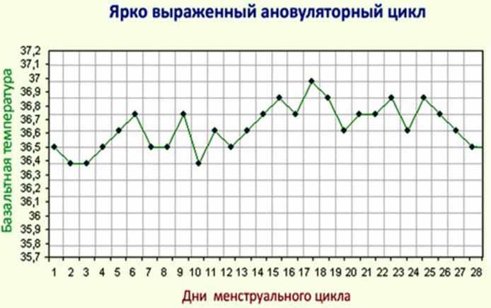 График БТ при ановуляторном цикле
