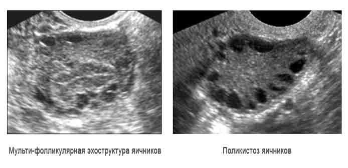 Результаты ультразвукового исследования яичников