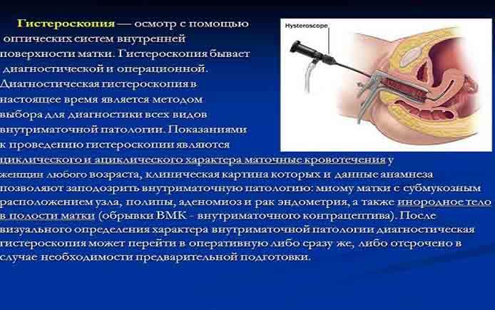 Показания к гистероскопии