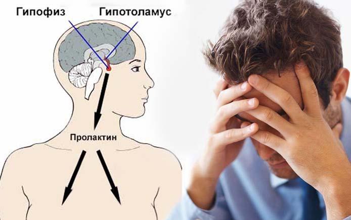 Повышение пролактина у мужчины