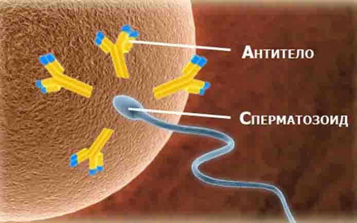 Реакция антител женщины на мужские спермотозоиды