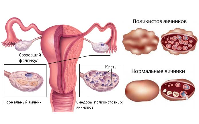 Поликистозные яичники: как забеременеть, лечение