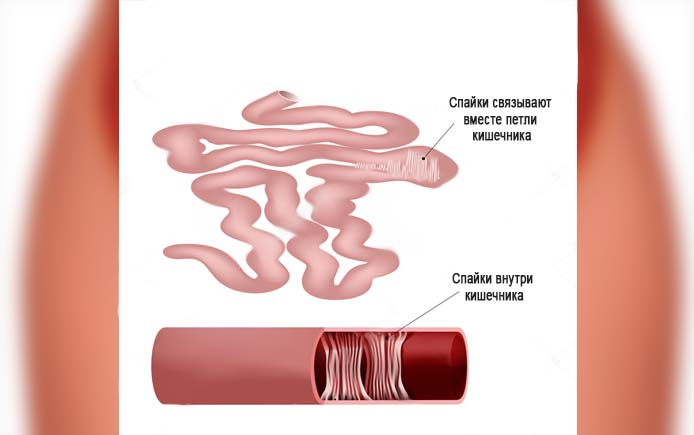 Спайки могут связывать петли кишечника между собой