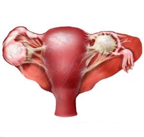 спайки по женски симптомы