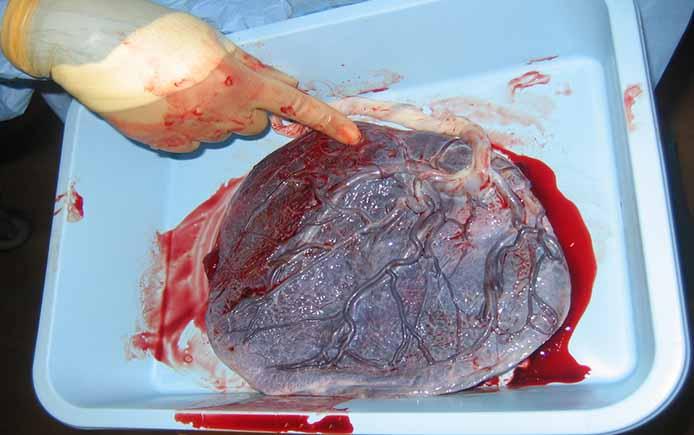 Внутренняя поверхность плаценты