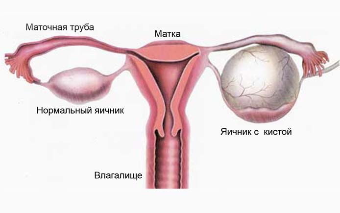 Кистозное образование на яичнике