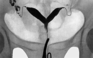 Метропластика матки