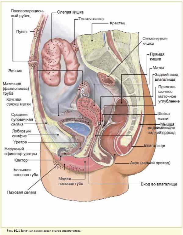 Локализация очагов эндометриоза
