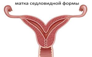 Седловидная матка