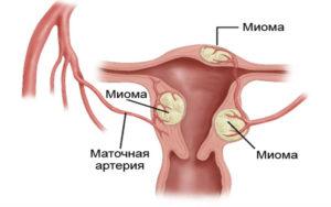 Миома в полости матки