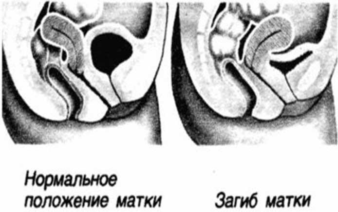 rost-glubina-vlagalisha