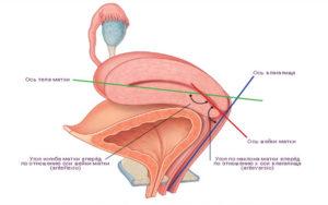 Схема поворота матки
