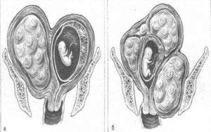 Развитие плода при миоме матки