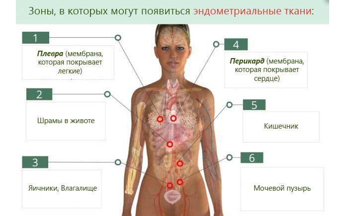 Зоны, в которых могут появиться эндометриальные ткани