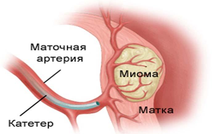 Эмболизация маточного узла