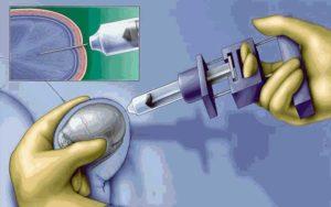 Оперативные способы лечения нарушения сперматогенеза