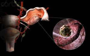 Разрыв фолликула и выход созревшей яйцеклетки