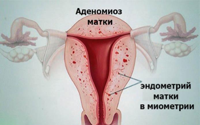 Внутренний эндометриоз 1 степени как лечить